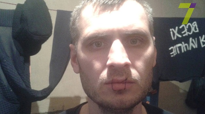 В Измаильском СИЗО арестант зашил себе рот. ФОТО