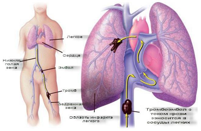 Инфаркт легкого: как диагностировать опасное заболевание?