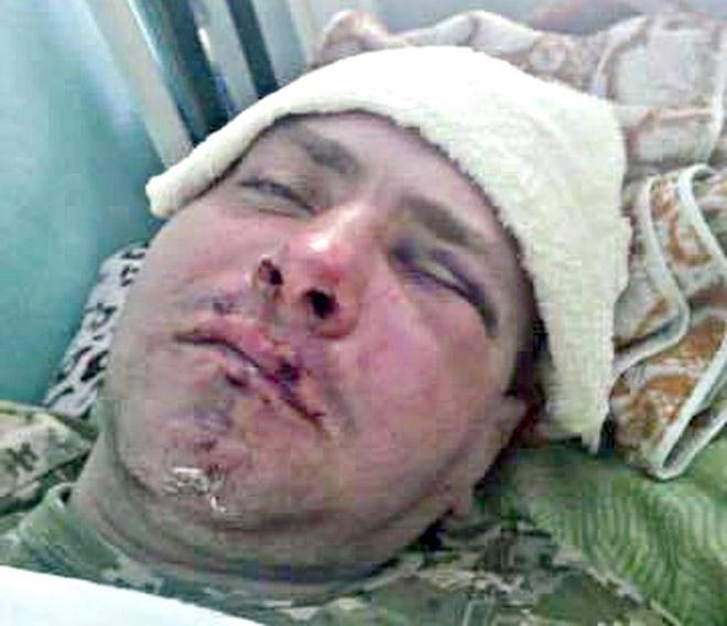 В Измаиле неизвестные жестоко избили ветерана АТО