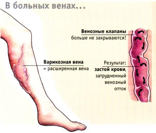 профилактика варикоза вен
